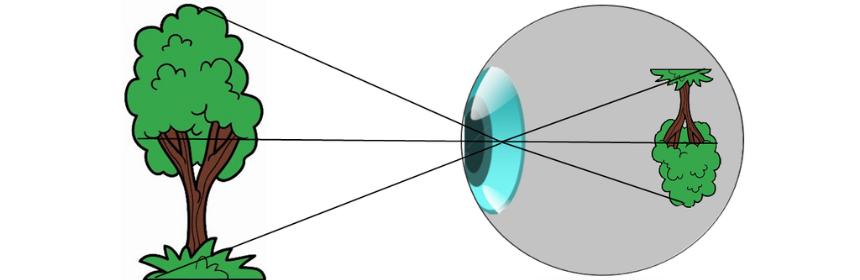Formación de una imagen en el globo ocular