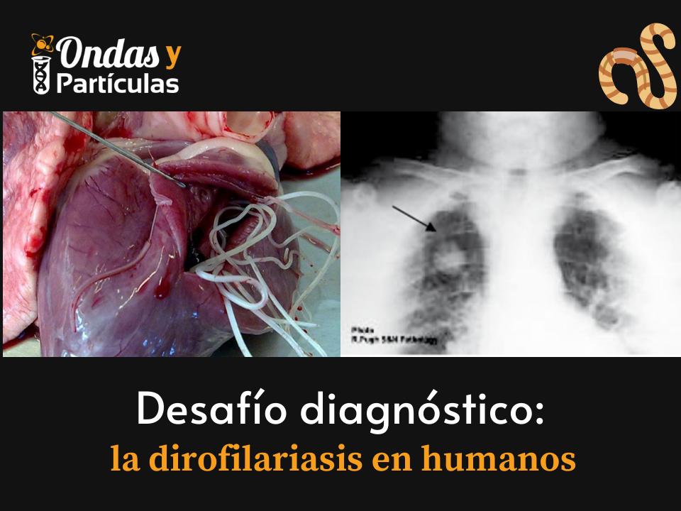 Dirofilariasis