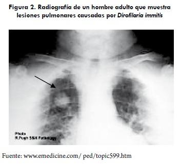 Radiografía de un hombre adulto que muestra lesiones pulmonares causadas por Dirofilaria immitis.
