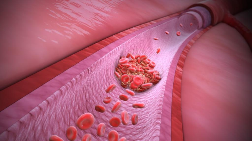 Disfunción endotelial en el covid-19