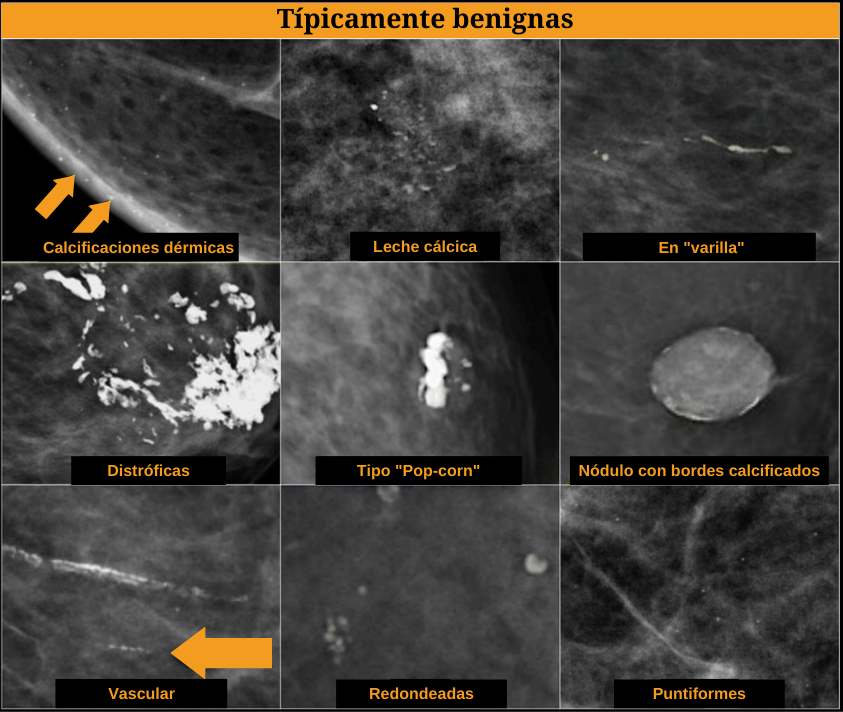 Sistema bi-rads Calcificaciones de la glandula mamaria, mamografia tipicamente benignas calcificaciones dermicas, calcificaciones tipo pop-corn, calcificaciones vasculares, leche calcica, nodulo con bordes calcificados