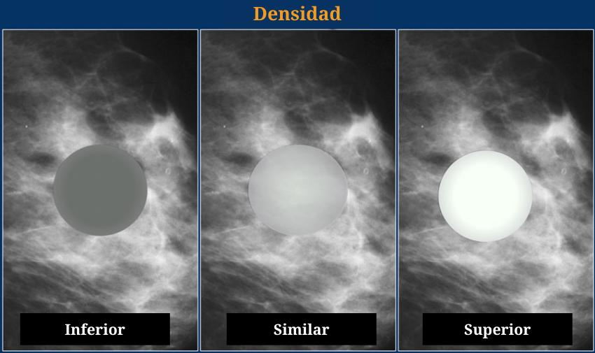 Densidad de un nodulo en el sistema BI-RADS: hiposensa o inferior, isodensa o similar, hiperdensa o inferior. mamografia