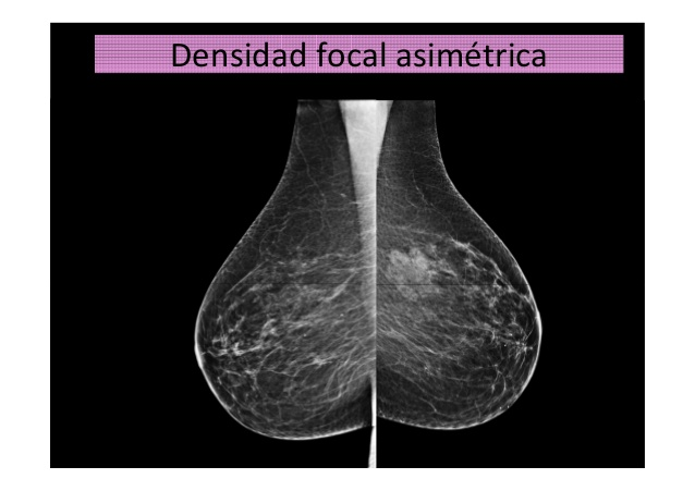 Densidad-asimetrica-focal