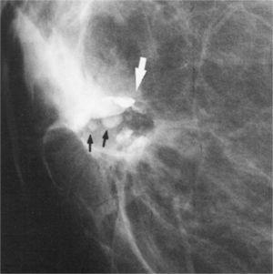 Hamartoma: Es un tipo de tumor mamario benigno, también llamado fibroadenolipoma. Se reconoce en la mamografia por ser redondeado y bien delimitado.