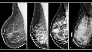MAMOGRAFIA sistema BI-RADS comointerpretar una mamografia