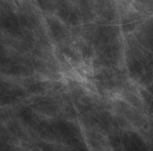 sistema birads mamografia calcificacion en palomita de maiz