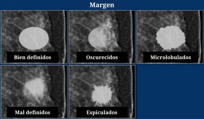 Bordes de un nodulo en el sistema BI-RADS margenes circunscritos oscurecidos redondeados irregulares mamografia