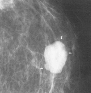 Nodulo-lobulado-de-densidad-superior-al-parenquima-mamografia