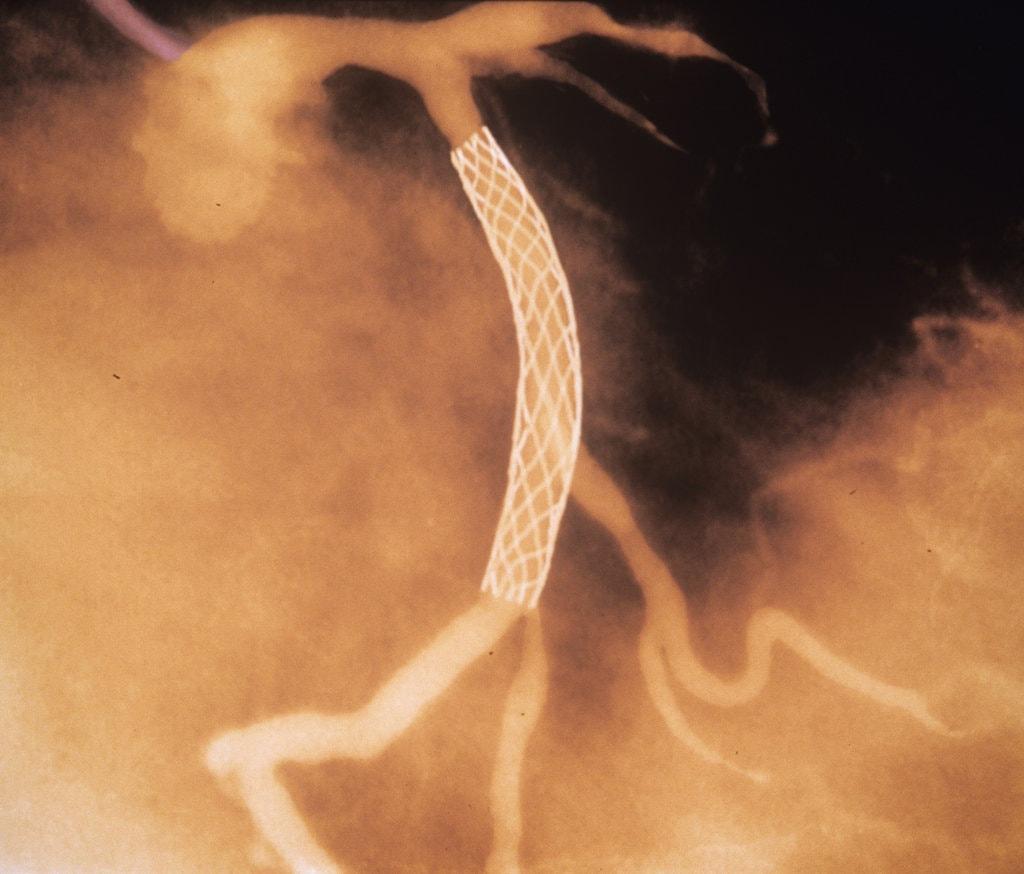 Angiograma coronario. Endoprótesis vascular. Stent coronario. Intervención coronaria por vía percutánea
