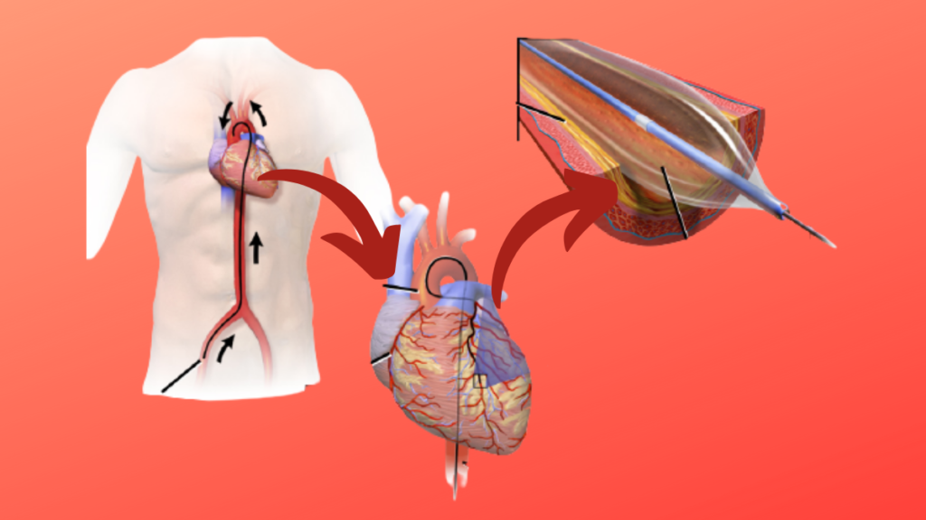 Intervención coronaria percutánea (ICP). Angioplastia Coronaria